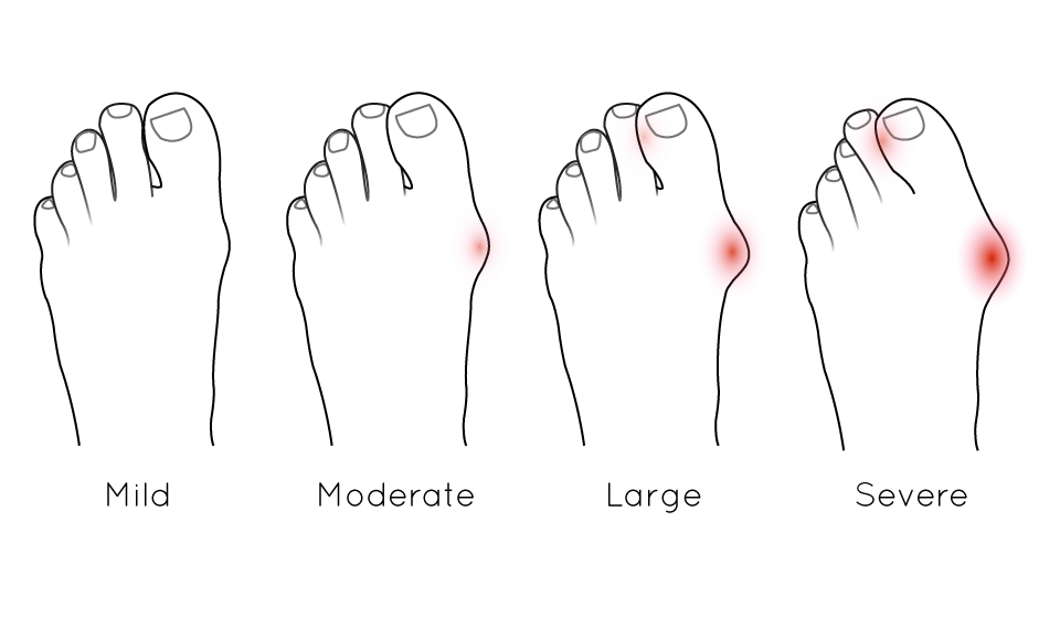 anatomical drawing demonstrating the stages of bunion severity